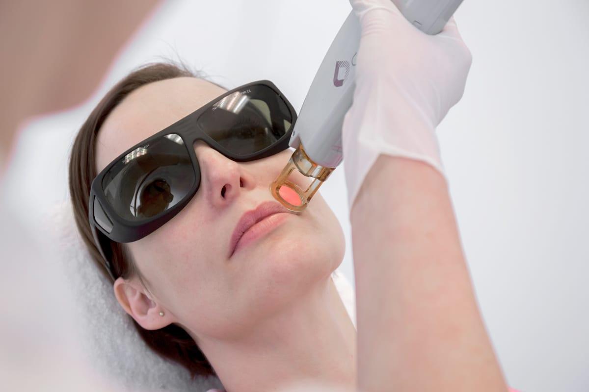 laserbehandeling pigmentvlekken gezicht 5