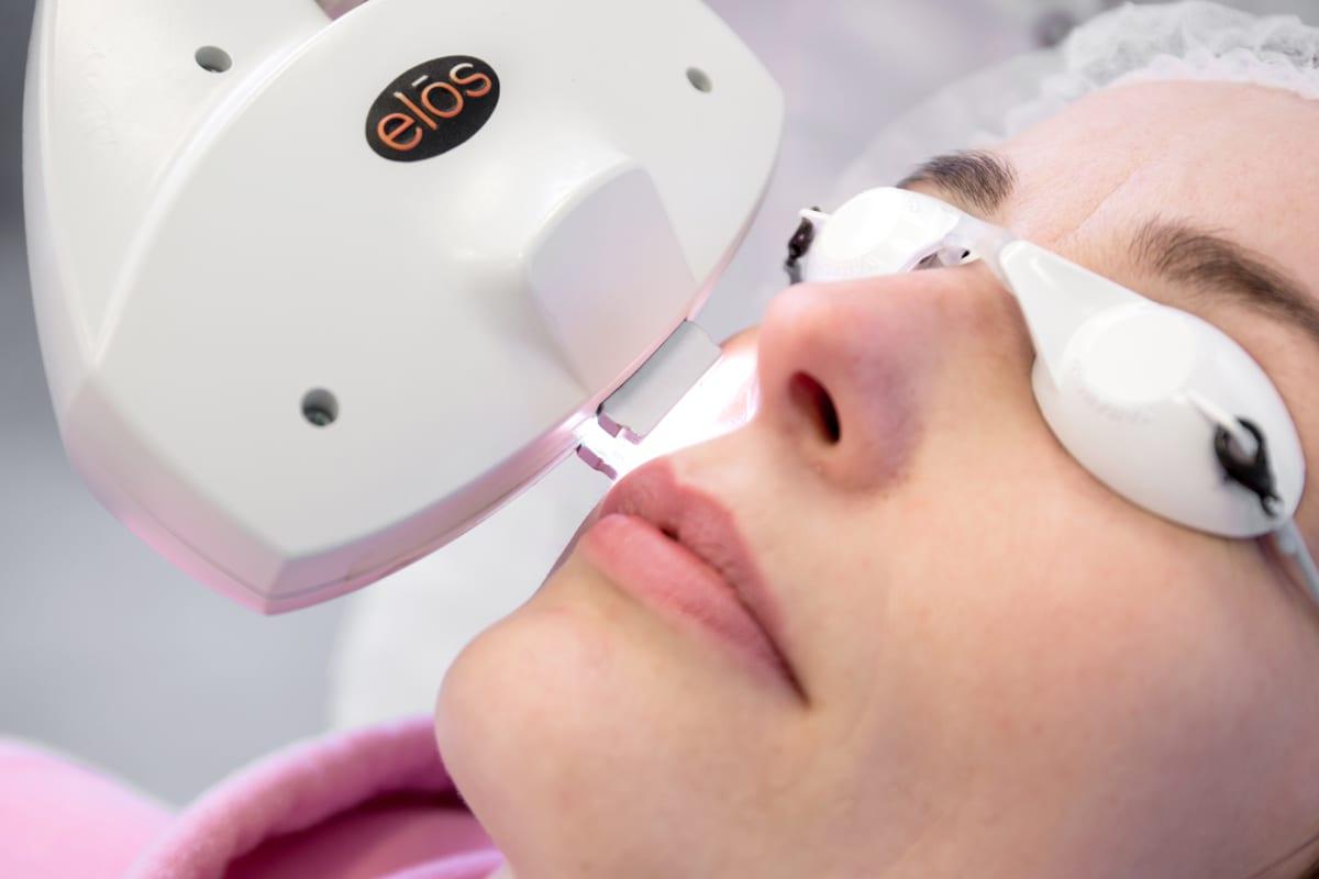 couperose behandeling gezicht