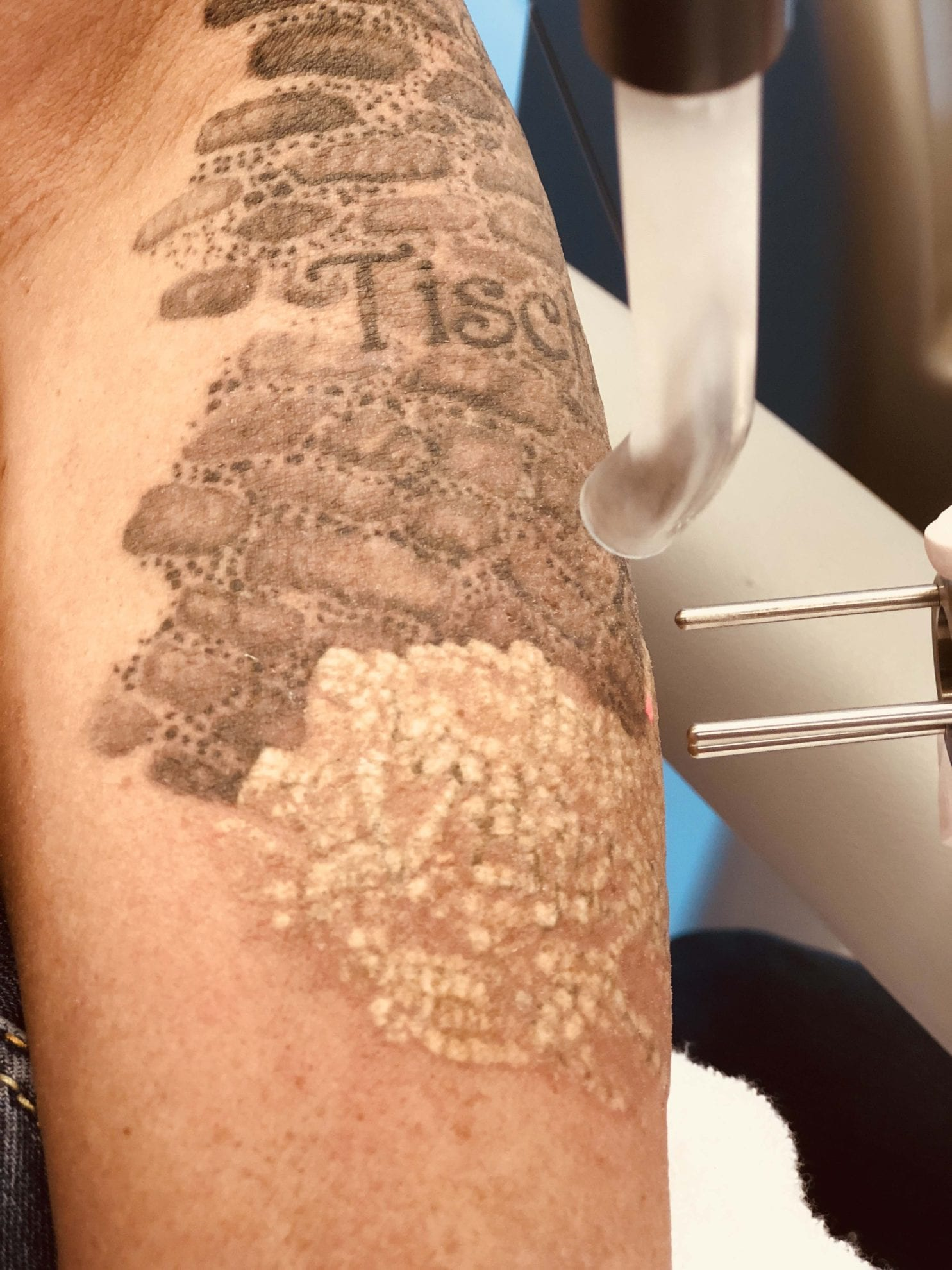 Tatoeage Verwijderen Arnhem Nu Actietarief Bij Mediderm